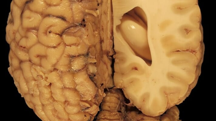 Complex swine brains opening the door for neuroscience thumbnail image