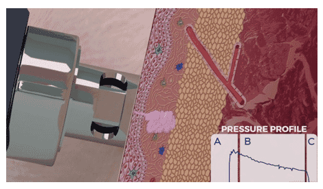 Figure 3. Representation of the three different pressure stages of a needle- free device during the intradermal administration of a vaccine into pig skin.