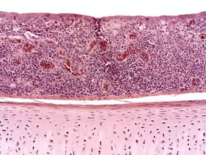 a cross-section showing inflamed tissue