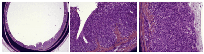 Score 3 =Severe Inflammatory lesions. Lymphocytes and plasmocytes invasion inducing thickening all around the trachea wall.