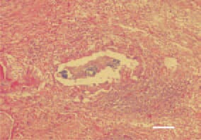 Fig. 9. Staphylococcal tenosynovitis. Central caseous necrotic lesions and clusters of bacterial colonies. Intensive inflammatory cell reaction (lymphocytes, granulocytes and macrophages) affecting the tendon sheath layers. H/E, Bar = 40 µm.