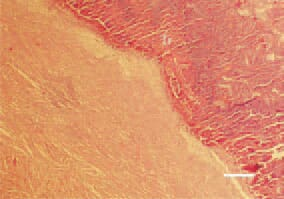 Fig. 1. Valve thromboendocarditis. Massive thrombotic masses (Tr) coating the mitral valve in the left heart side of a duck. It is generally associated with Streptococcus zooepidemicus. H/E, Bar = 40 µm.