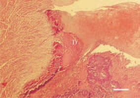 Fig. 2. Streptococcosis, duck. A mixed wall thrombus (Tr) partially occluding the left atrioventricular opening. H/E, Bar = 50 µm.