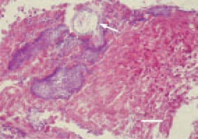 Fig. 4. Multiple clostridiae among the necrotic intestinal mucosa and formation of a cavity (arrow) as a result of gas production. H/E, Bar = 25 µm.