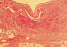 Fig. 1. Gangrenous dermatitis in a broiler chicken. The microscopic lesions are characterized with oedema, emphysema, hyperaemia, haemorrhages and necroses (N) in the subcutaneous tissue. H/E, Bar = 100 µm.