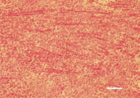 Fig. 5. Diffuse pleomorphic cell proliferation in the myocardium, resulting in atrophy of myofibrils. H/E, Bar = 35 µm.