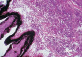 Fig. 12. Lymphoid cell proliferations in the iris and ciliary muscles in the ocular form of Marek's disease. H/E, Bar = 50 µm.