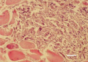 Fig. 7. Rhabdomyosarcoma, pectoral muscle, hen. An extremely high polymorphism of cells constituting tumour parenchyma. H/E, Bar = 25 µm.
