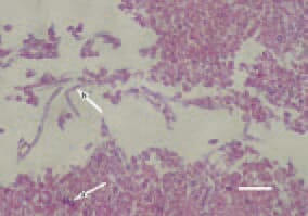 Fig. 1. In acute aspergillosis, fungal spores (arrow – a) and grown hyphae (arrow – b) could be observed among the inflammatory necrotic masses. H/E, Bar = 30 µm.