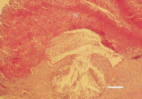 Fig. 1. Candidosis, turkey broiler. A focal pseudomembranous lesion (N) prominating over the mucosal surface of the crop. H/E, Bar = 50 µm.
