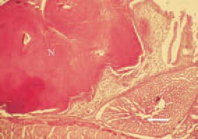 Fig. 2. Candidosis, turkey broiler. A diphtheroid necrotic mass (N), filling a biliary lumen of the proventriculus mucous coat. H/E, Bar = 40 µm.
