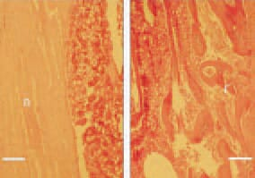 Fig. 4. In cases of prolonged calcium deficiency, a removal of calcium from the skeleton does occur. Consequently, thinning of cortices of long bones is resulting. Longitudinal cross-section, femurs, 40-day-old broiler chickens. Left: normal thickness of the bone wall (n). Right: extreme thinning of the cortex (r) due to demineralization in a broiler chicken. H/E, Bar = 50 µm.