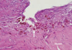 Fig. 3. Macrophages (siderocytes) (arrow) among the neocollagenous connective tissue, H/E, Bar = 30 µm.
