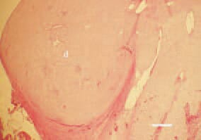 Fig. 3. Subperiosteal dysplasia (d) of prehypertrophic cartilage in the proximal tibia region, resulting in bone deformation. H/E, Bar = 100 µm.
