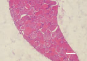 Fig. 1. & Fig. 2. Transverse/londitudinal cross-section, thigh muscle, chicken, after intoxication with high doses maduramycin. Enhanced eosinophilia and denenerative necrobiotic lesions of muscle fibres. H/E, Bar = 40 µm.