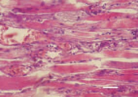 Fig. 3. Longitudinal cross-section, thigh muscle, chicken, after intoxication with high doses maduramycin. Appearance of macrophages and initial organization of necrotic detritus occuring after muscle fibre breakdown. H/E, Bar = 50 µm.