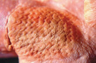 Cellultis. In some cases, the lesions are slightly prominating over the adjacent healthy skin.