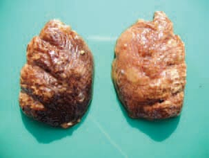 "Acute fowl typhoid. The lungs acquire a characteristic brown colour. Here, necroses and, following their organization, ""sarcoma-like nodules"