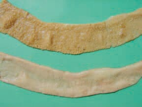 necrotic mucosa acquires a greyish-creamy or greenish appearance. Sometimes the mucosa has a flannelette blanket-like appearance