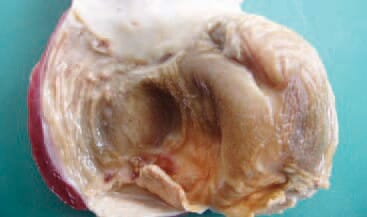 The cuticulum of the gizzard in broilers whose diet contains Fusarium toxins, is frequently with a linear appearance and under the ulcerations, the subcuticular surface is seen.