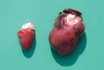 The aetiology is not known, but genetic factors or early viral myocarditis is supposed. The state is lethal in turkeys at the age of 1 - 4 weeks. Pathoanatomically, a severe dilated cardiomyopathy, often accompanied with ascitis, hydropericardium and congestion of other organs is detected.