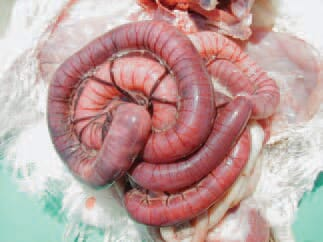 Rotation of the small intestine on the longitudinal axis of the mesentery, resulting in venous stasis and necrosis of the intestinal wall.