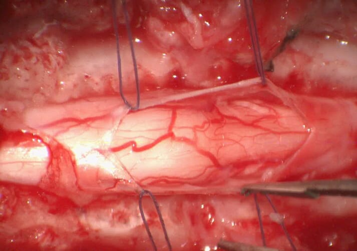 FIGURE 1 Microphotography of a durectomy performed in a pug after removal of a subarachnoid diverticulum under microscopic control. The holding sutures are of a 6-0 suture (0.07mm in diameter). Note the clarity of visualisation of delicate structures, such as spinal vessels and the spinal cord itself