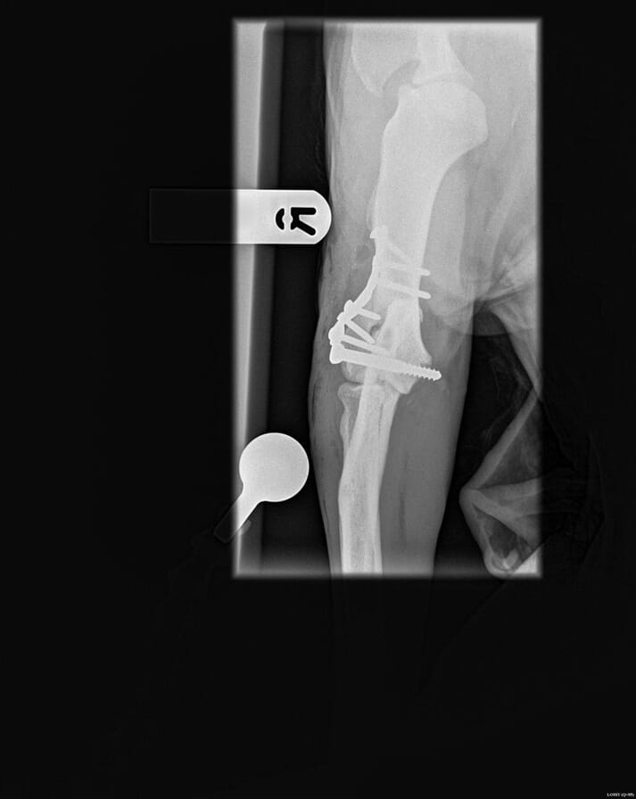 FIGURE (4) A lateral condylar fracture repair with a plate supporting the epicondylar ramus and a 4.5mm shaft screw across the condyles