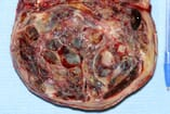 FIGURE 1 Granulosa cell tumour is common and is a functional non-malignant tumour that is easily resolved by ovariectomy, either using laparoscopy or by using conventional midline laparotomy