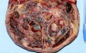 FIGURE 1 Granulosa cell tumour is common and is a functional non-malignant tumour that is easily resolved by ovariectomy, either using laparoscopy or by using conventional midline laparotomy thumbnail